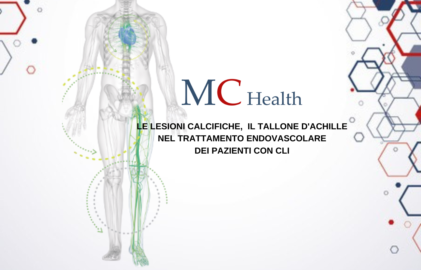 Calcified lesions, the Achilles heel in the endovascular treatment of CLI patients